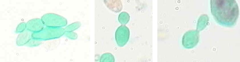 Figure 7. Yeast (Saccharomyces) budding X 1000.