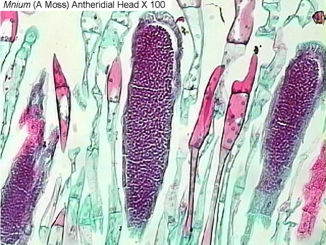 Figure 5. Mnium (a moss) antheridial head x100