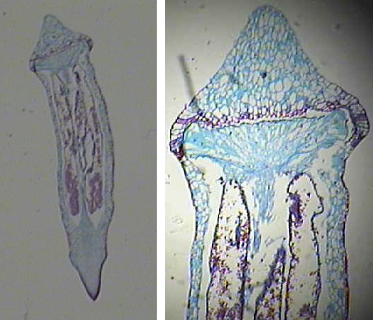 Figure 8. Moss capsule containing spores
