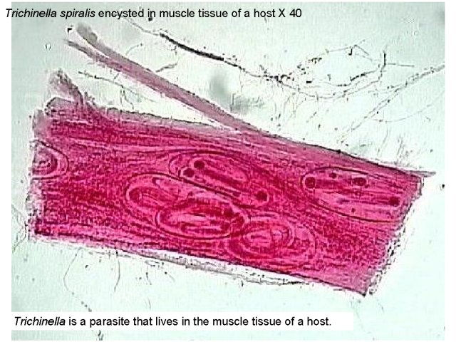 Figure 1. Trichinella spiralis encysted in muscle tissue of a host X 40