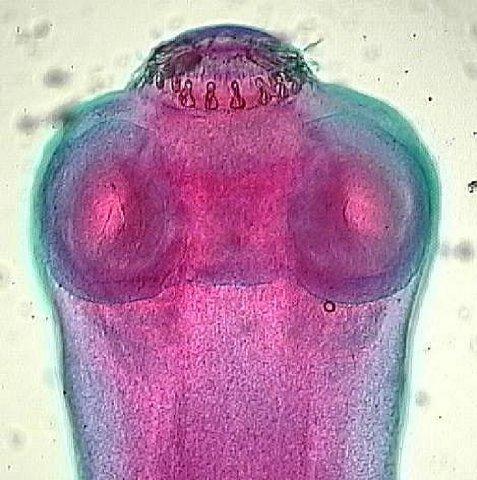 Figure 3. Taenia scolex X 40