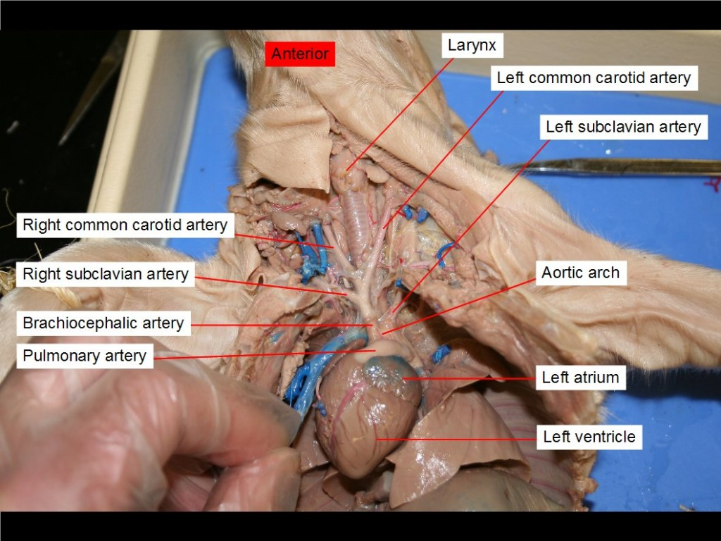 Figure 36. Aortic arch, left atrium, brachiocephalic artery, left common carotid artery, right common carotid artery, larynx, pulmonary trunk, left subclavian artery, right subclavian artery, left ventricle.