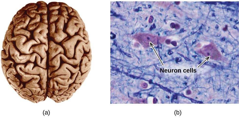 "Two pictures are shown. The left picture shows the human brain. The right picture is a microscopic image that depicts two large irregularly shaped masses in a field of threadlike material interspersed with smaller, relatively round masses. The two larger masses are labeled with arrows and the phrase ""Neuron cells."""