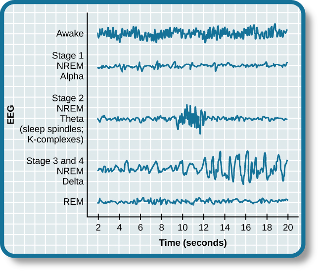 "A graph has a y-axis labeled ""EEG"" and an x-axis labeled ""time (seconds.) Plotted along the y-axis and moving upward are the stages of sleep. First is REM, followed by Stage 3 and 4 NREM Delta, Stage 2 NREM Theta (sleep spindles; K-complexes), Stage 1 NREM Alpha, and Awake. Charted on the x axis is Time in seconds from 2–20 in 2 second intervals. Each sleep stage has associated wavelengths of varying amplitude and frequency. Relative to the others, ""awake"" has a very close wavelength and a medium amplitude. Stage 1 is characterized by a generally uniform wavelength and a relatively low amplitude which doubles and quickly reverts to normal every 2 seconds. Stage 2 is comprised of a similar wavelength as stage 1. It introduces the K-complex from seconds 10 through 12 which is a short burst of doubled or tripled amplitude and decreased wavelength. Stages 3 and 4 have a more uniform wave with gradually increasing amplitude. Finally, REM sleep looks much like stage 2 without the K-complex."