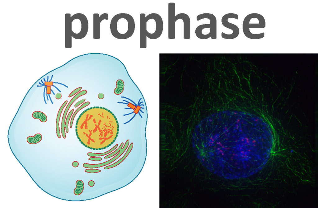 An artist's rendering of a cell in prophase, and a micrograph of a cell in prophase. The condensed chromosomes are clearly visible in both.