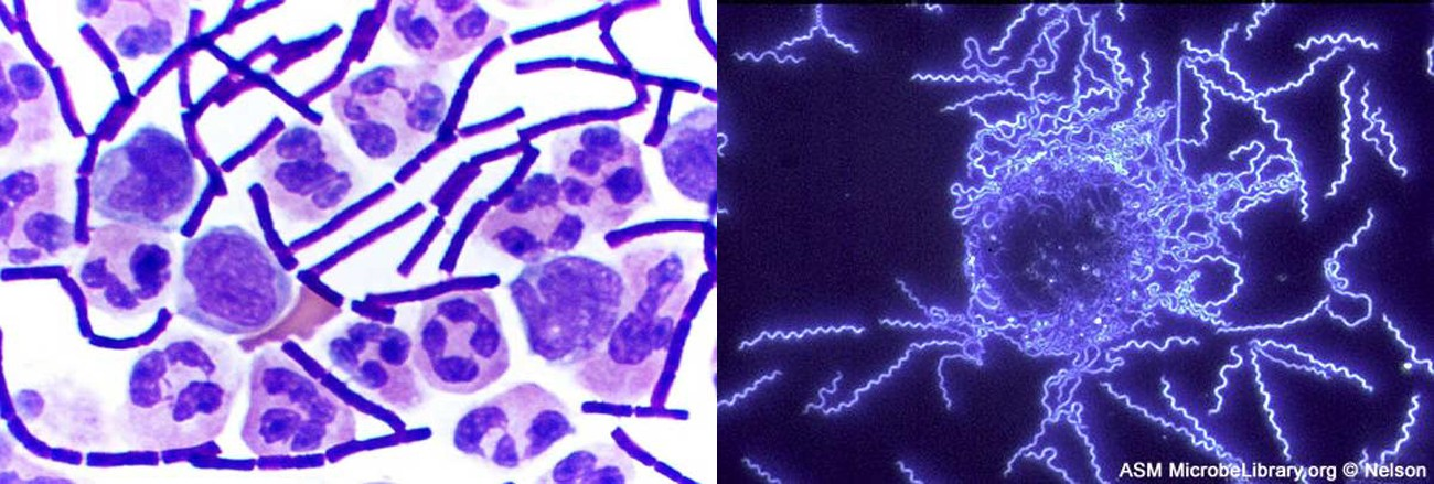 The left image shows a clear background with chains of solid purple rods and larger circular cells. The larger cells contain darker purple blotches inside each cell. The right image shows a black background with thin, glowing spirals.