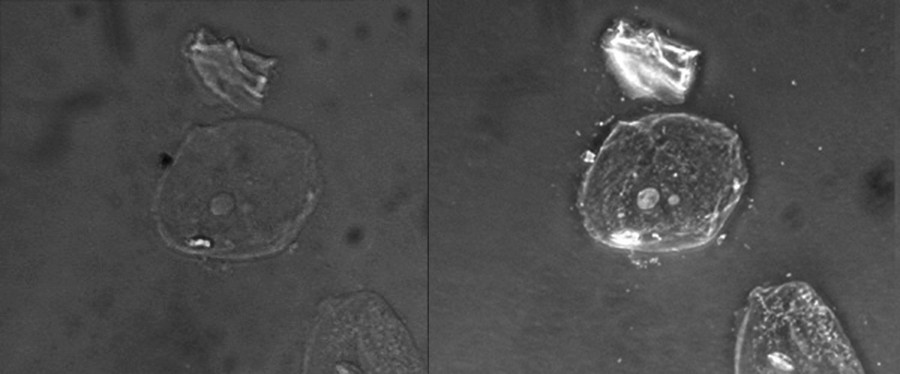 Two micrographs of a cell on a dark background are shown. In the brightfield image the cell is a faint circle with a small grey circle in the center. In the phase-contrast image the cell is a bright circle with a bright circle in the center.