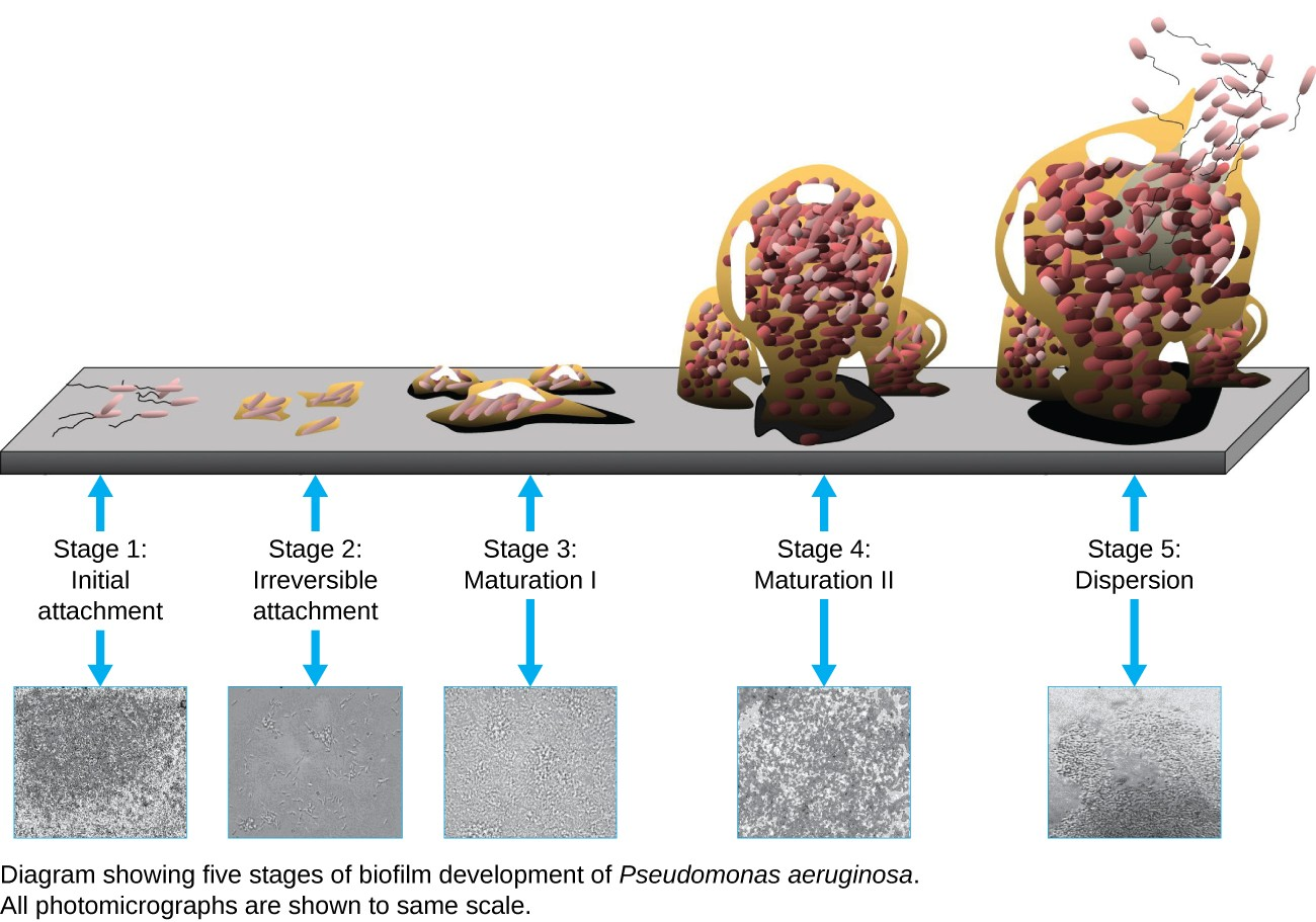 The stages of a biofilm are shown. In stage 1 (initial attachment), a few flagellated cells attach to a surface. In stage 2 (irreversible attachment) clumps of cells are found on the surface. In stage 3 (maturation) the clumps have enlarged. In stage 4 (maturation 2) the clumps have fused and enlarged greatly. In stage 5 (dispersal) the large clump releases flagellated cells away from the surface. These stages are also shown in micrographs: 1) small dots, 2) larger clumps, 3)larger clump, 4) a large mass, 5) a large mass with an opening at the top.