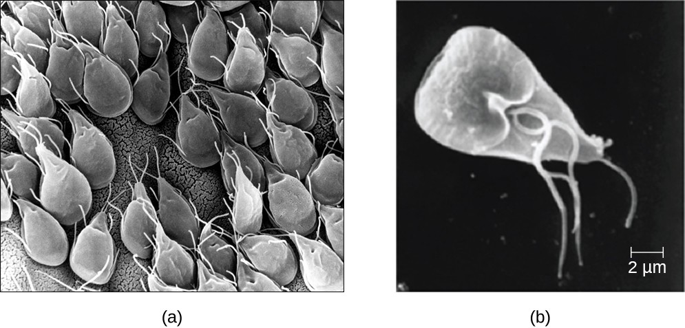a) A micrograph of kite-shaped cells. B) a single triangular cell with multiple flagella.
