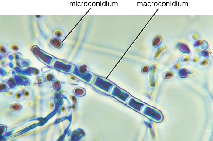 A micrograph of a long strands with cell walls. The long strand is labeled macroconidium. Smaller spheres outside the long strand are labeled microconidia.