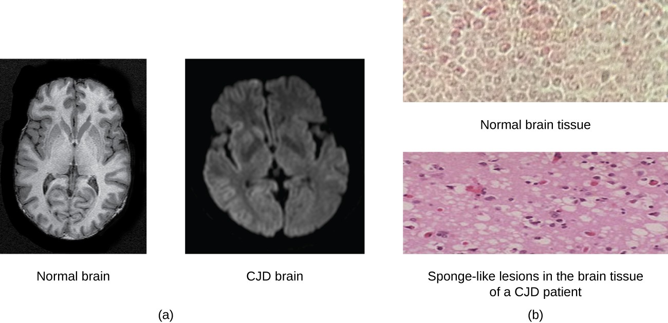 The CJD brain has larger spaces as seen by more black regions in the image of the whole brain. The micrograph shows holes in the brain tissue.