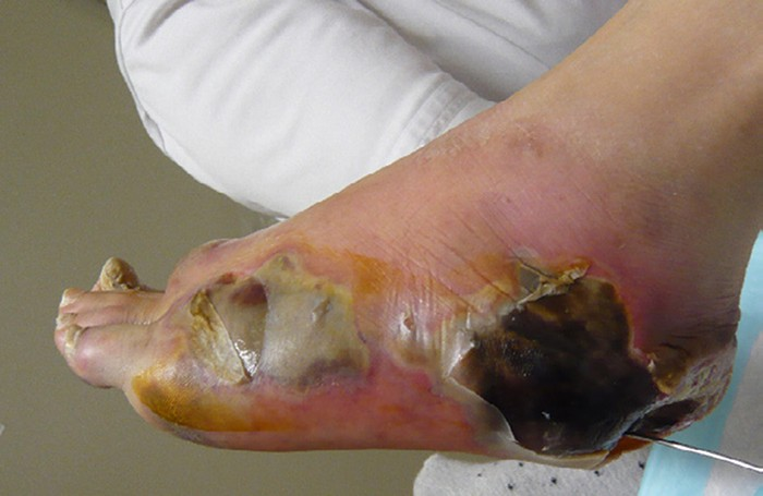 A swollen foot with peeling skin and black regions under the skin.