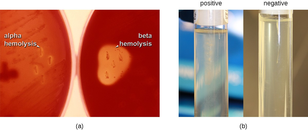 a) Two blood agar plates which have a red color. The left plate is labeled alpha hemolysis and shows slight clearings around the colonies. The right plate is labeled beta hemolysis and shows complete clearings around the colonies. B) Two tubes. The left tube is positive and shows cloudiness spreading out from the central line down the middle of the tube. The right tube is negative and shows no cloudiness spreading out from this central line.