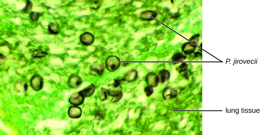Micrograph showing green stained lug tissue and brown celled labeled P. jiroveci.