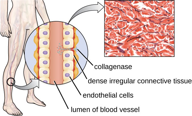 A diagram of a tube labeled lumen of blood vessel lined by cells labeled endothelial cells. Outside he cells is dense irregular connective tissue. Collagenase is shown as small dots that break up the connections between the cells. A micrograph of the dense connective tissue shows many red lines making a meshwork.