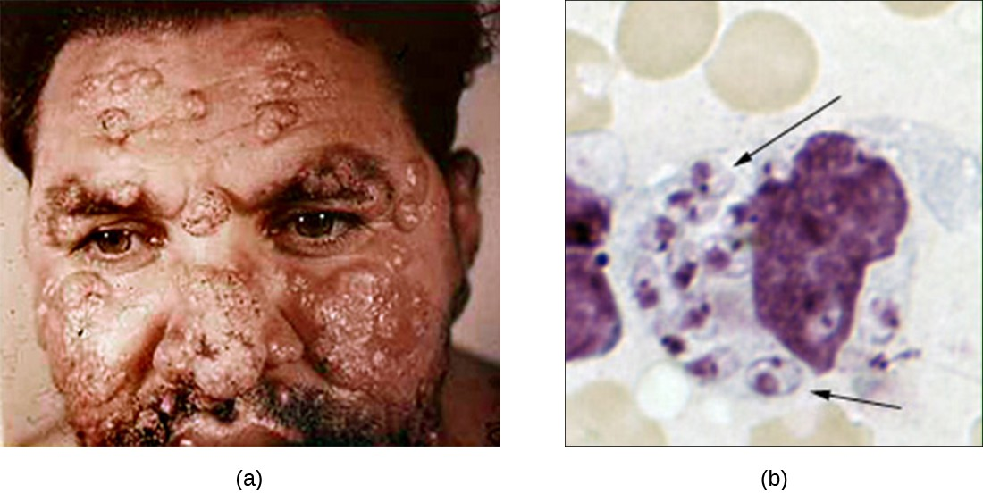 a) a photo of a man with large skin lesions covering his face b) A macrophage in a field of red blood cells. The macrophage has many smaller circles inside of it. Each of these has a distinct nucleus.