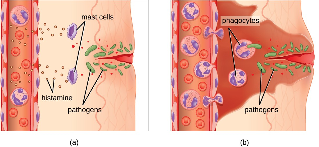 a) a diagram of a wound in the skin that has let pathogens enter. Mast cells release histamines which signal to cells in the blood stream. B) The cells have left the blood stream; these phagocytes are engulfing the pathogens.