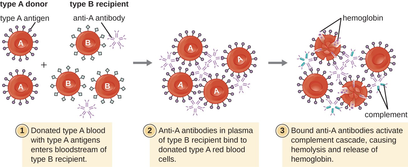 Diagram of a Type A donor giving blood to a Type B recipient. 1: Donated type A blook with type A antigens enters bloodstream of type B recipient. Red blood cells with Type A antigens and red blood cells with Type B antigens are shown; anti-A antibody is also present. 2: Anti-A antibodies in plasma of Type B recipient bind to donated type A red blood cells. 3: Bound anti-A antibodies activate complement cascade, releasing hemoglobulin and destroying red blood cells. Small dots are shown destroying type A cells.