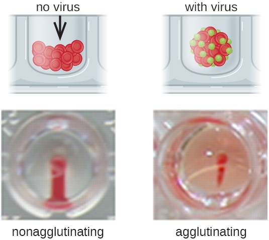 Agglutination Assays Microbiology