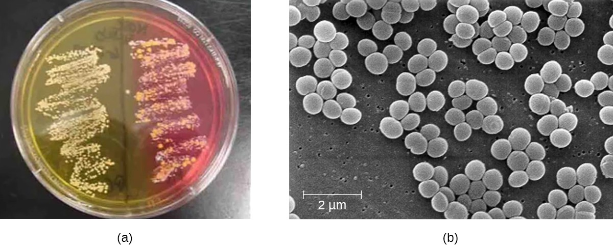 a) An agar plate with 2 regions of growth. One region has a yellow background, the other has a pink background. B) A micrograph of clusters of round cells. Each cell is just under 1 µm in diameter.