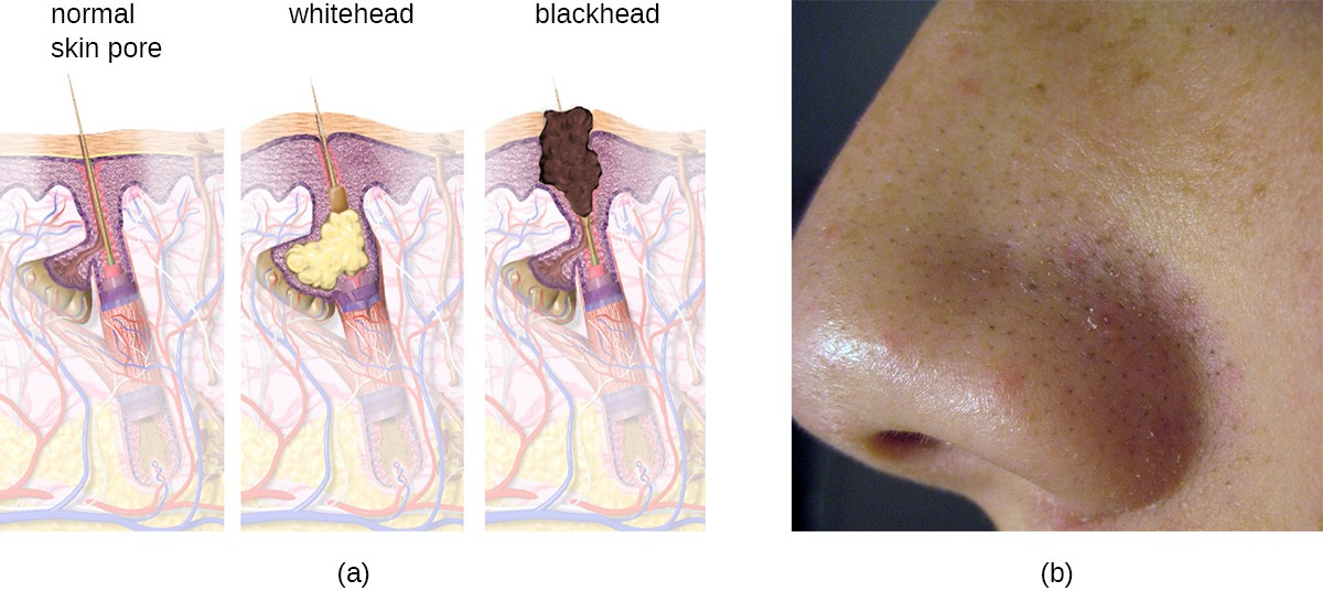 a) diagram of blackhead formation. A normal pore in the skin becomes filled with material forming a whitehed. Darker material forms a blackhead. B) blackheads on a nose.