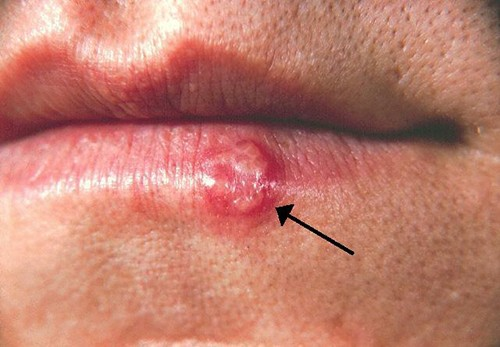 Photo of cold sore on a lip.