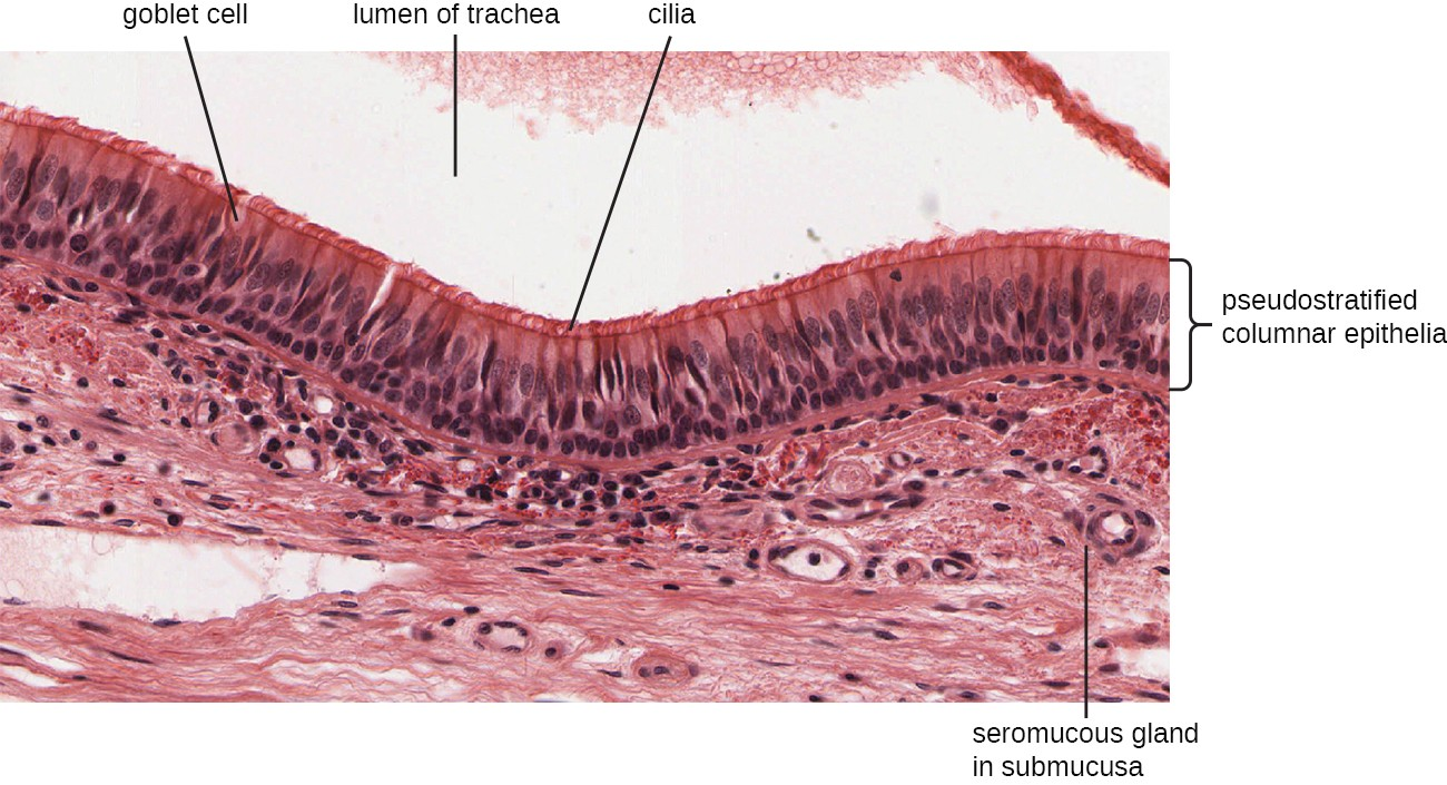 A micrograph showing a space at the top labeled lumen of trachea. Underneath this are long cells with a brush border at the top. These cells are called pseudostratified columnar epithelia. The brush border is many cilia. Vase shaped cells in this layer are called goblet cells. Below this layer is tissue with small spheres labeled seromucous gland in submucosa.