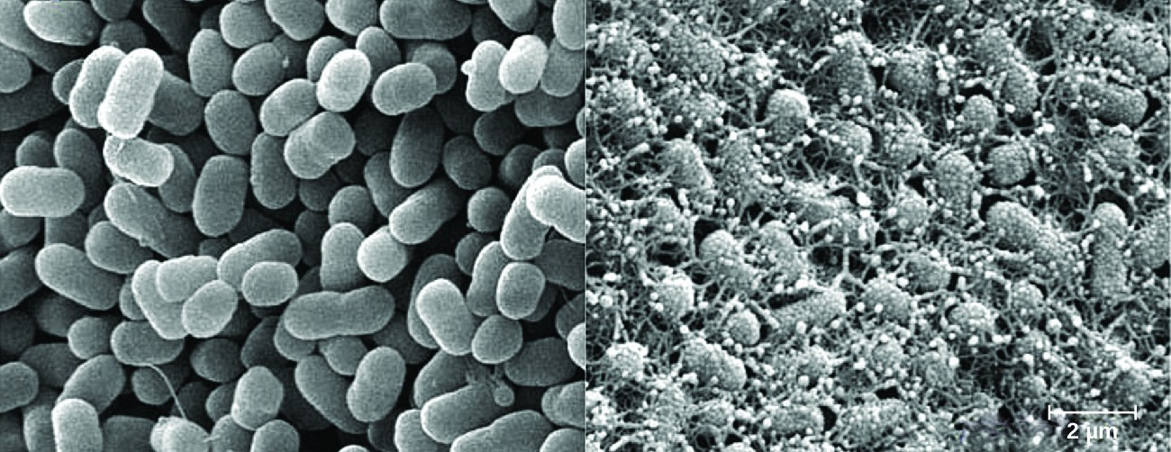 Micrograph of oval cells with and without projections.