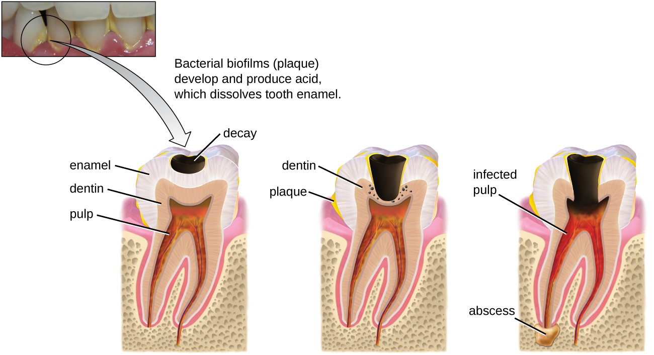 A photo of teeth with yellow plaque; label reads: bacterial biofilms (plaque) develop and produce acid which dissolves tooth enamel. This leads to a diagram showing the process. The first step show a black region labeled decay in the enamel; the dentin and pulp are not yet affected. Yellow material on the tooth and near the region of decay is labeled plaque. Next, the decay expands and is labeled abscess; this reaches the dentin layer. Finally, the abscess expands and causes an infected pulp.