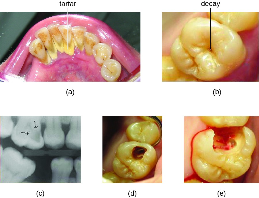 Microbial Diseases of the Mouth and Oral Cavity | Microbiology