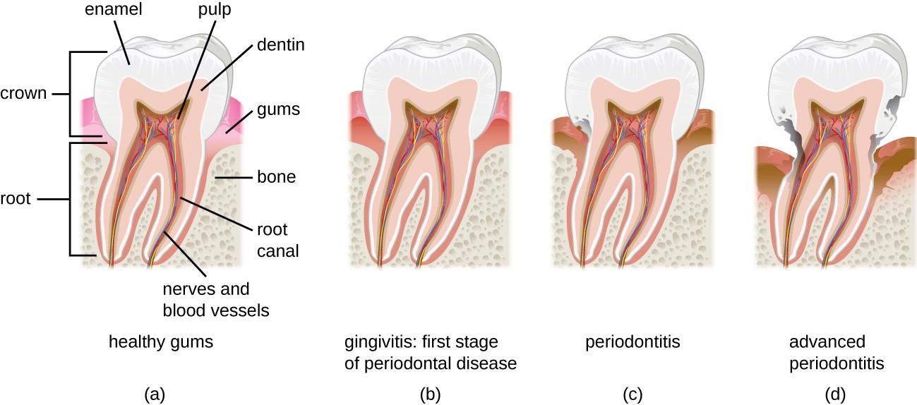 Diagram of a tooth with healthy gums. The crown is the part above the gums, the root is the part below the gums. The enamel is the outer layer, inside is the dentin and inside that is the pulp which contains the root canal, nerves, and blood vessels. Below the gums is bone. Gingivitis is the first stage of periodontal disease. This is when the gums become darker red and swollen. Periodontitis the gumsrecede and the enamel begins to break. In advanced periodontitis the gums recede even further and the tooth degenerates past the enamel and into the dentin and pulp.
