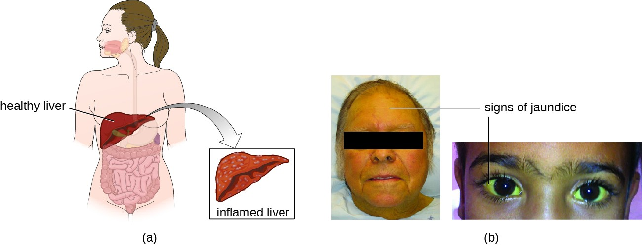 A) Shows an illustration comparing a healthy liver to an inflamed liver. B) A woman with yellowing eyes is shown and another with yellowing skin.