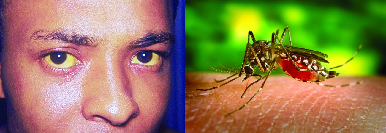 Photo of a person with yellow eyes. Photo of a mosquito on an arm.