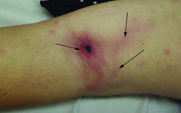 An arm with a dark red spot on the elbow with red lines emanating from it under the skin.