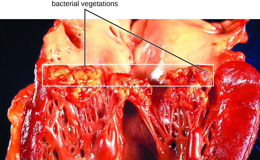 Bacterial Infections of the Circulatory and Lymphatic