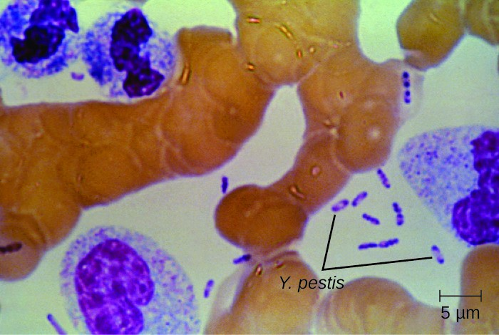 A micrograph showing small rod shaped purple cells in between larger human cells. The purple bacterial cells have a small clear circle in the center.