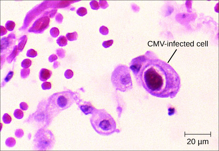 Micrograph of cells. A large one with a large, dark nucleus is labeled CMV-infected cell.