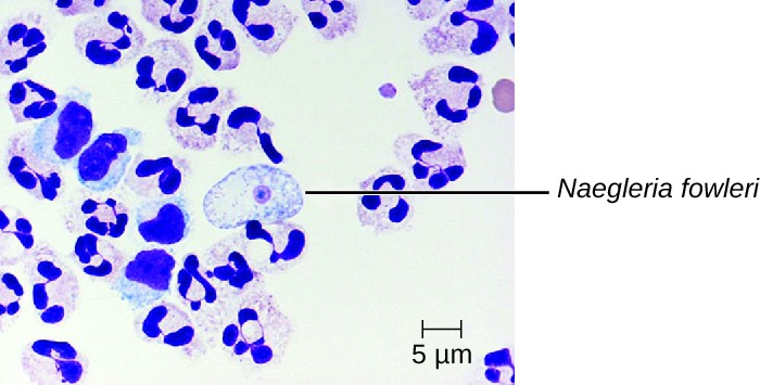 Micrograph of white blood cells and a large cell with a small circle in the center labeled N. fowlerii.