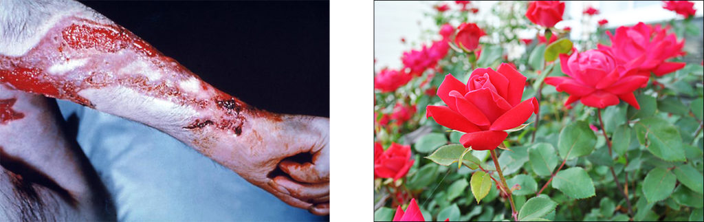 An arm with festering, bleeding scratches and a picture of a rose plant.