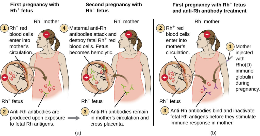 a) First pregnancy with Rh+ fetus resulting in healthy newborn. The diagram shows an Rh- mother and an Rh+ fetus. Rh+ red blood cells cross the placenta into mother's circulation. This causes anti-Rh antibodies to be produced in the mother upon exposure to fetal Rh antigens. The second pregnancy with Rh+ fetus results in hemolytic newborn. The diagram shows an Rh- mother with an Rh+ fetus. Anti-Rh antibodies remain in mother's circulation from the first pregnancy and cross the placenta. Maternal anti-Rh antibodies attack and destroy fetal Rh+ red blood cells. B) First pregnancy with Rh+ fetus and anti-Rh antibody treatment resulting in healthy newborn The diagram shows an Rh- mother and an Rh+ fetus. Rh+ red blood cells fromt eh fetus clross placenta into mother's circulation. Anti-Rh antibodies (Rhogam) bind and inactivate fetal Rh antigens before they stimulate immune response in mother.