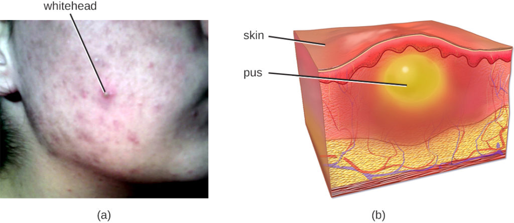 a) Acne (labeled whitehead) on a person's cheek. B) A drawing of skin with a yellow bubble labeled pus. This is below a raised region on the skin.