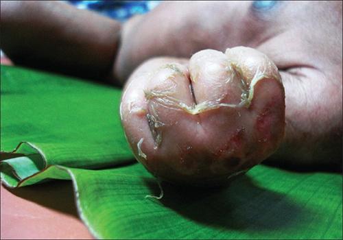 Skin peeling off a hand.