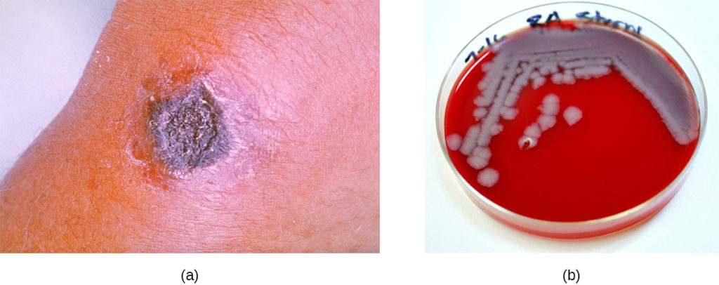 a) A black nodule on skin. b) A red plate with grey colonies.
