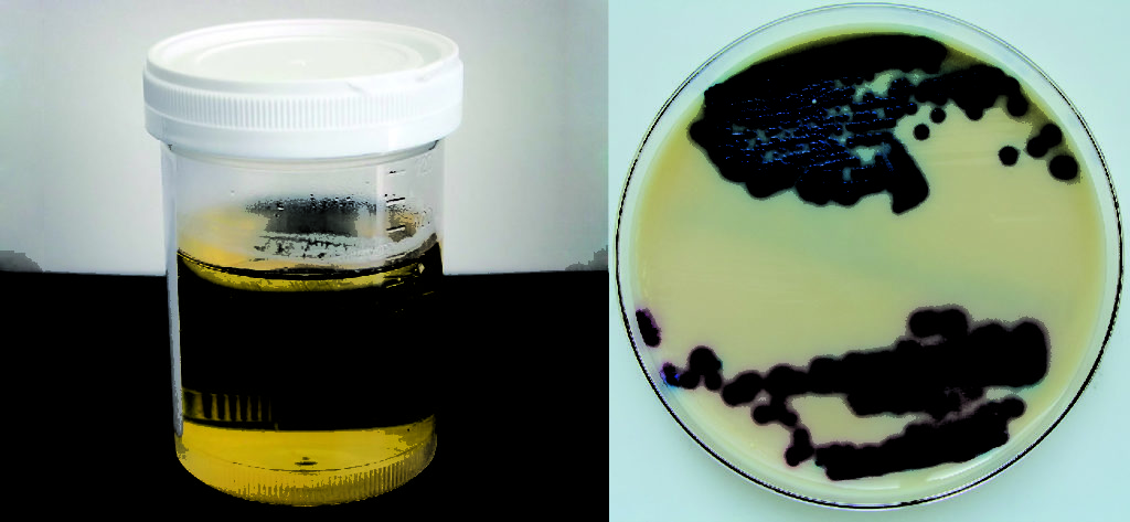 a small container filled with urine is shown on the left. The picture on the right shows a disc with a peach colored film that is spotted with red and blue spots.