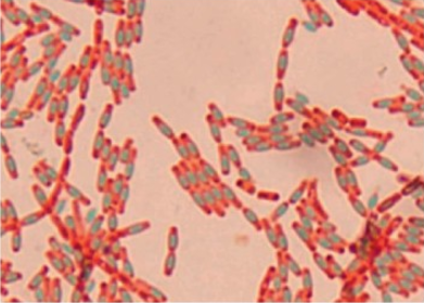 Endospores appear bluish-green; other structures appear pink to red