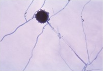 An image of Aspergillus niger shows long strands with a dark sphere at the end of one strand.