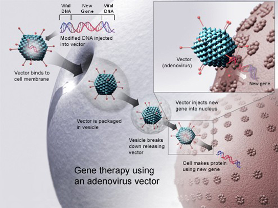To cure disease using an adenovirus vector, a new gene intended to replace a defective one is packaged with the adenovirus genome. The genes that make the virus pathogenic are removed. The modified DNA is put inside the virus' capsid, or protein coat. The person to be cured is infected with the modified virus. Viral DNA enters the nucleus, where the modified gene can replace the defective one.