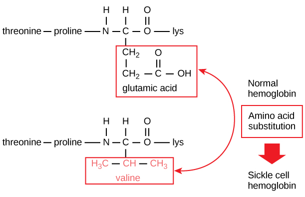 A portion of the hemoglobin amino acid sequence is shown. The normal hemoglobin beta chain has a glutamate at position six. The sickle cell beta chain has a valine at this position.