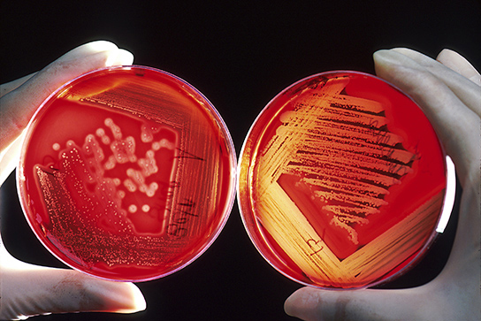 Two bacterial plates with red agar are shown. Both plates are covered with bacterial colonies. On the right plate, which contains hemolytic bacteria, the red agar has turned clear where bacteria are growing. On the left plate, which contains non-hemolytic bacteria, the agar is not clear.