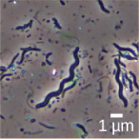 A micrograph of spiral-shaped Spirillum minus